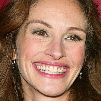 Det berømte multi-million-$ smil
